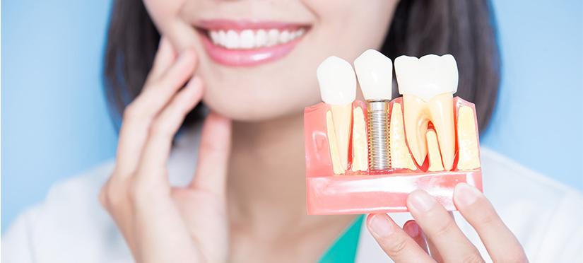 Мини-имплантация зубов- понятие, назначение и главные особенности