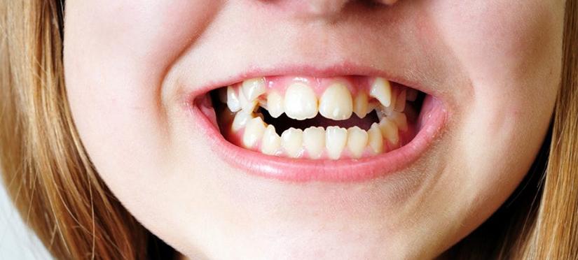 Гипердонтия – аномалия числа зубов или когда их больше нормы