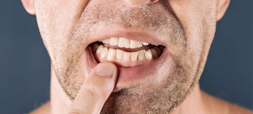 По каким причинам крошатся зубы?