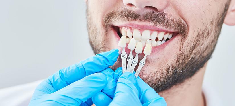Профессиональная чистка зубов – залог красивой улыбки