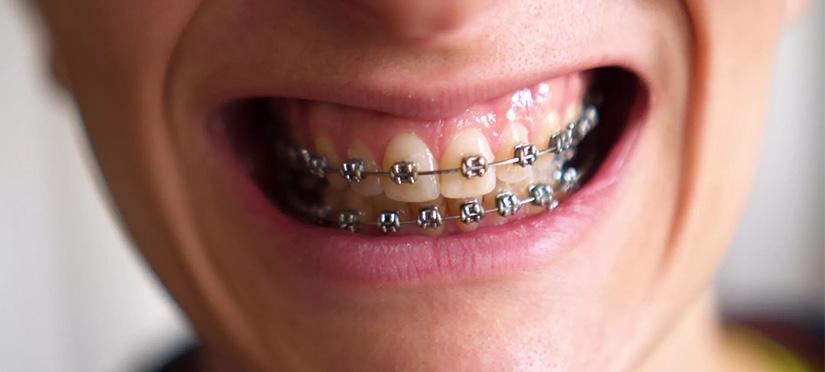 Почему темнеют зубы в брекетах?