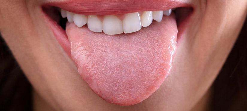 Что такое кандидоз полости рта