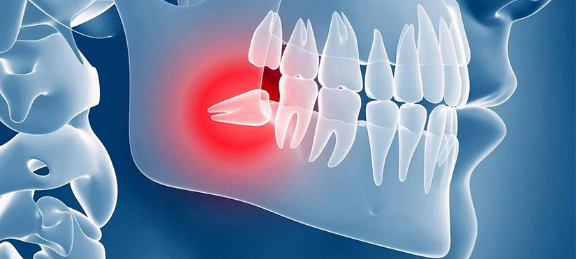Проблемы при прорезывании зуба мудрости