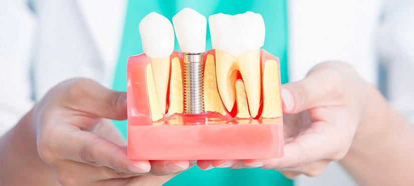 Имплантация зубов: мифы и реальность