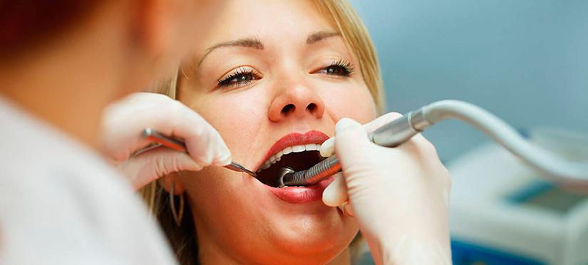 Зубной камень причины, последствия, удаление